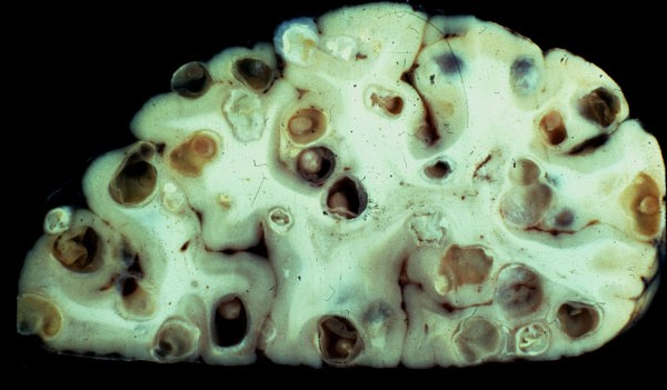Tapeworms produce larvae that can eat holes in the brain
